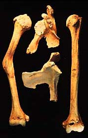 Fractured humerus with dislocation